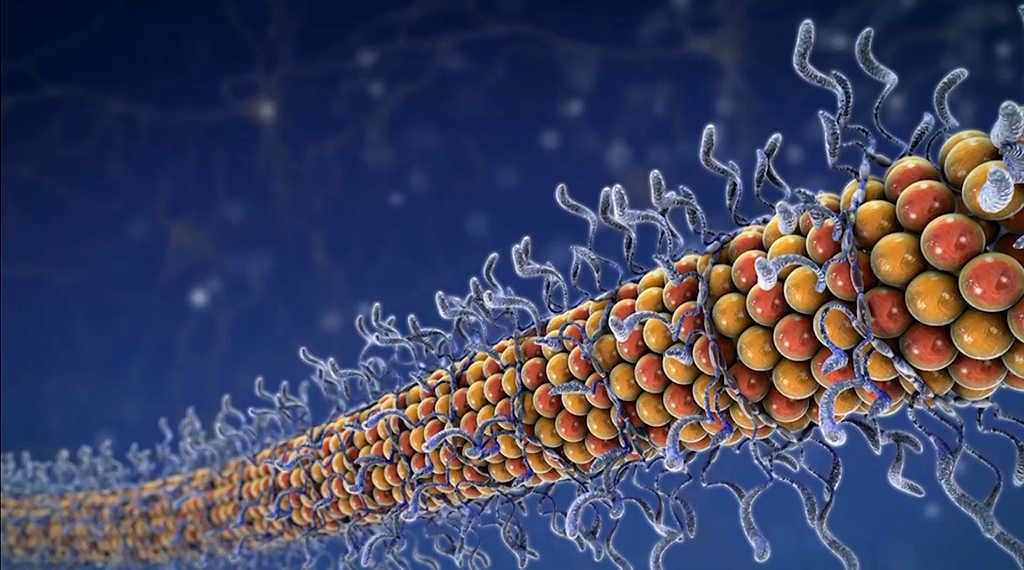Zusammenhang mit Alzheimer-Demenz – das Tau-Protein ist ein natürlich im Gehirn vorkommendes Protein, dessen Funktion es ist, Nervenzellen dabei zu unterstützen, ihre Form zu bewahren. © AbbVie