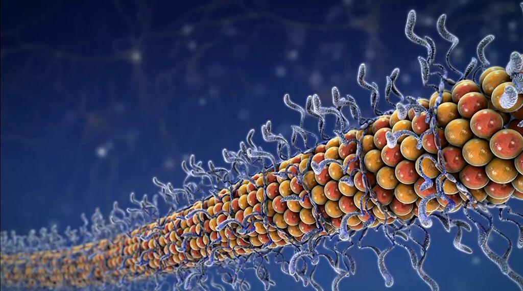 Knäule entwirren – Herausforderung Alzheimer-Forschung: bei Tau handelt es sich um ein natürlich im Gehirn vorkommendes Protein. Seine Funktion ist es, Nervenzellen dabei zu unterstützen, ihre Form zu bewahren. © AbbVie