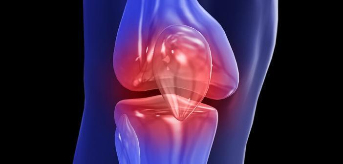 Die Behandlung der Gonarthrose sollte individuell »maßgeschneidert« erfolgen. © biomedical / shutterstock.com