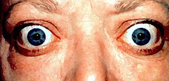 Endokrine Orbitopathie mit Lidretraktion und Exophthalmus bei Basedow-Hyperthyreose © Dr. Jonathan Trobe / University of Michigan Kellogg Eye Center / CC BY 3.0
