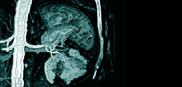 pAVK-Patienten benötigen aus Gründen der Komorbidität sehr häufig eine Beta-Blocker-Therapie.