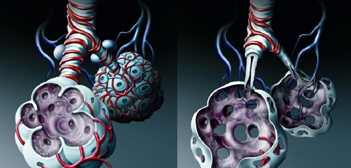 Weniger inhalative Glukokortikoide bei COPD