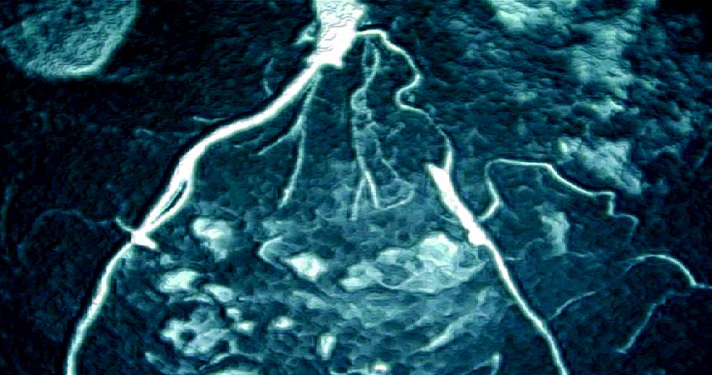 Eine sorgfältige Anamnese und klinische Untersuchung der Patienten mit vermuteter Gefäßkrankheit pAVK stellt die Basis für Diagnose und Differentialdiagnose der Schaufensterkrankheit dar.