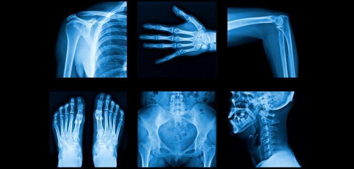 Die Rheumatologie betrifft nicht nur Gelenke, sondern auch Haut, Muskeln, Nerven und eine Vielzahl innerer Organe. © itsmejust / shutterstock.com