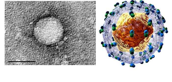 Ziel der Hepatitis-C-Therapie ist eine Heilung der Hepatitis-C-Virus(HCV)-Infektion. © TimVickers / BruceBlaus / CC BY-SA 4.0 / wikimedia