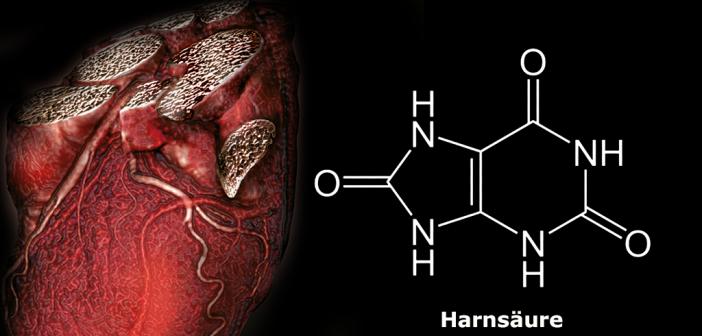 Ein Zuviel an Harnsäure scheint das Herz-Kreislauf-Risiko zu erhöhen. © AMM / afcom.at