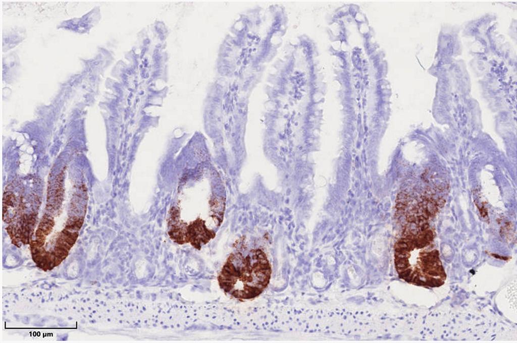 Das Hitzeschockprotein 60 in Mitochondrien kontrolliert die Stammzellproliferation im Darmepithel. Hitzeschockprotein-negative Krypten im Darm zeichnen sich durch den Verlust von braungefärbten Stammzellen aus, während Hitzeschockprotein-positive Darmareale eine verstärkte Stammzellproliferation zeigen. © Team Haller / TUM
