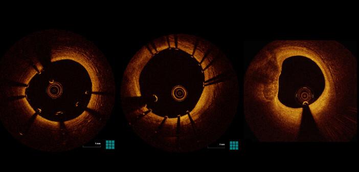 Langfristig ist eine zunehmend wichtige Rolle für die optische Kohärenztomographie (OCT) in der Kardiologie zu erwarten. © Leistner