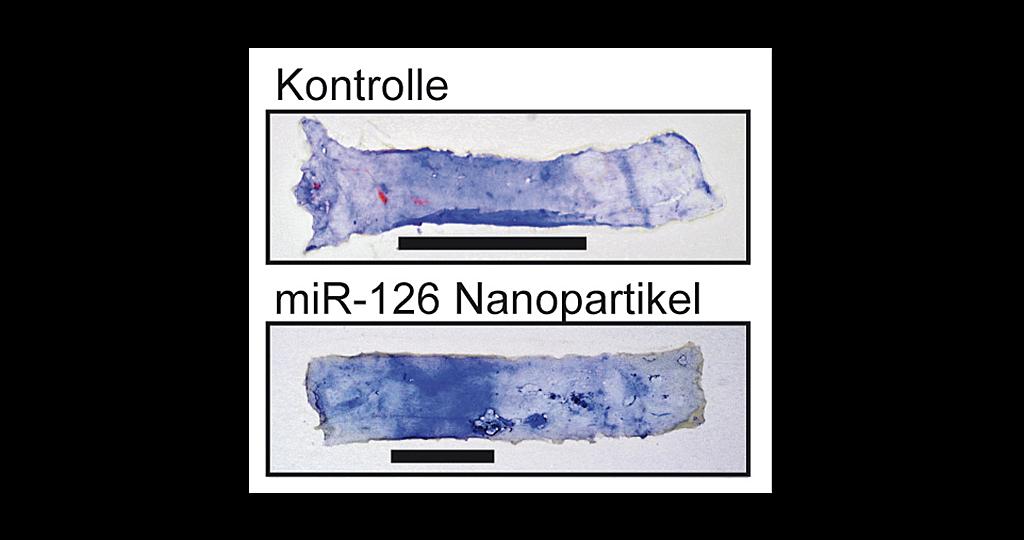 Das Foto zeigt Gefäße der Halsschlagader im Mausmodell. Die blauen Areale kennzeichnen geschädigte Bereiche. Nach Nanopartikel-Therapie mit miR-126 kommt es zu einer Rückbildung des Schadens. Daher ist dieses Verfahren ein innovativer therapeutischer Ansatz für die Gefäßheilung. © MHH / Sonnenschein