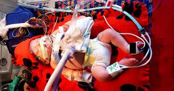 Bei einer Neugeborenensepsis sollte eine Parechovirus-Infektion differentialdiagnostisch erwogen werden. © Weichelt / CC BY-SA 4.0 / wikimedia