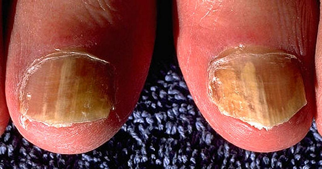 Onychomykose – Nagelpilz – an beiden großen Zähen. © CDC/Dr. Edwin P. Ewing, Jr. / wikimedia