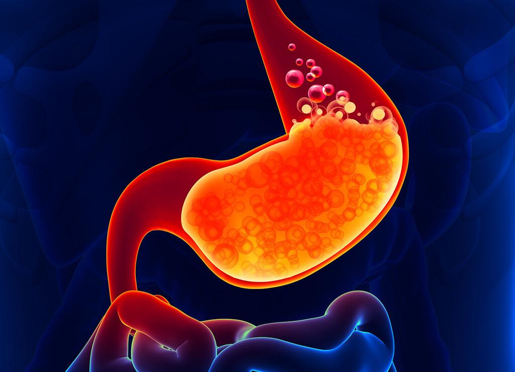 Die säuresuppressive Therapie lindert die Symptome und beugt Komplikationen bei der Gastroösophagealen Refluxkrankheit (GERD) vor. © decade3d anatomy-online / shutterstock.com