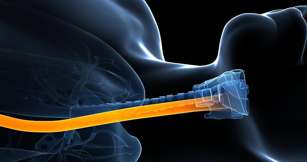 Erst in den 90er-Jahren hat man die Speiseröhrenentzündung als eigenständige Erkrankung und relevantes Problem registriert. © sebastian kaulitzki / shutterstock.com