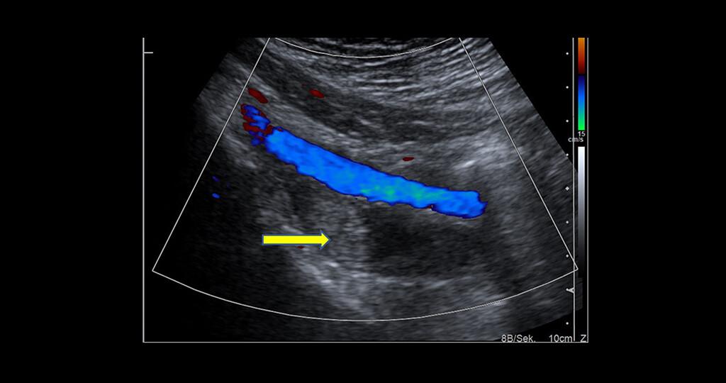 In der Duplexsonographie wird eine Beckenvenen-Thrombose sichtbar. © UKR / Gefäßchirurgie
