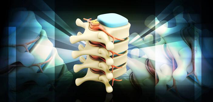 Die Wirbelsäulenchirurgie bei Traumata, Tumoren, Infektionen und Deformitäten der Wirbelsäule sowie bei neurologischer Ausfallssymptomatik ist typischerweise unstrittig. © raj creationzs / shutterstock.com
