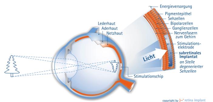 """""""Unser neues Tübinger Retina-Implantat Alpha ist nach 20-jähriger Entwicklung vor wenigen Monaten zugelassen worden und damit für Retinitis pigmentosa-Patienten verfügbar."""" © retina implant"""