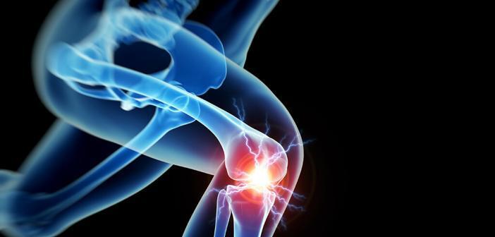 Frauen leiden häufiger unter Kniearthrose als Männer. © sebastian kaulitzki / shutterstock.com