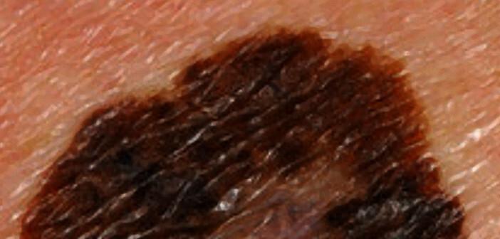 Die Dermato-Onkologie stand im Fokus am diesjährigen Deutschen Hautkrebskongresses in Dresden.