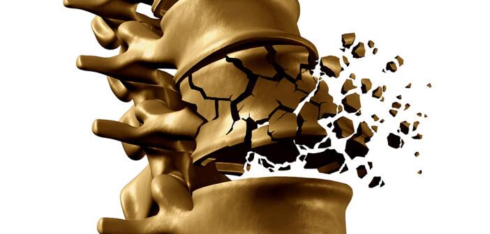 Volkskrankheit Osteoporose © Lightspring / shutterstock.com