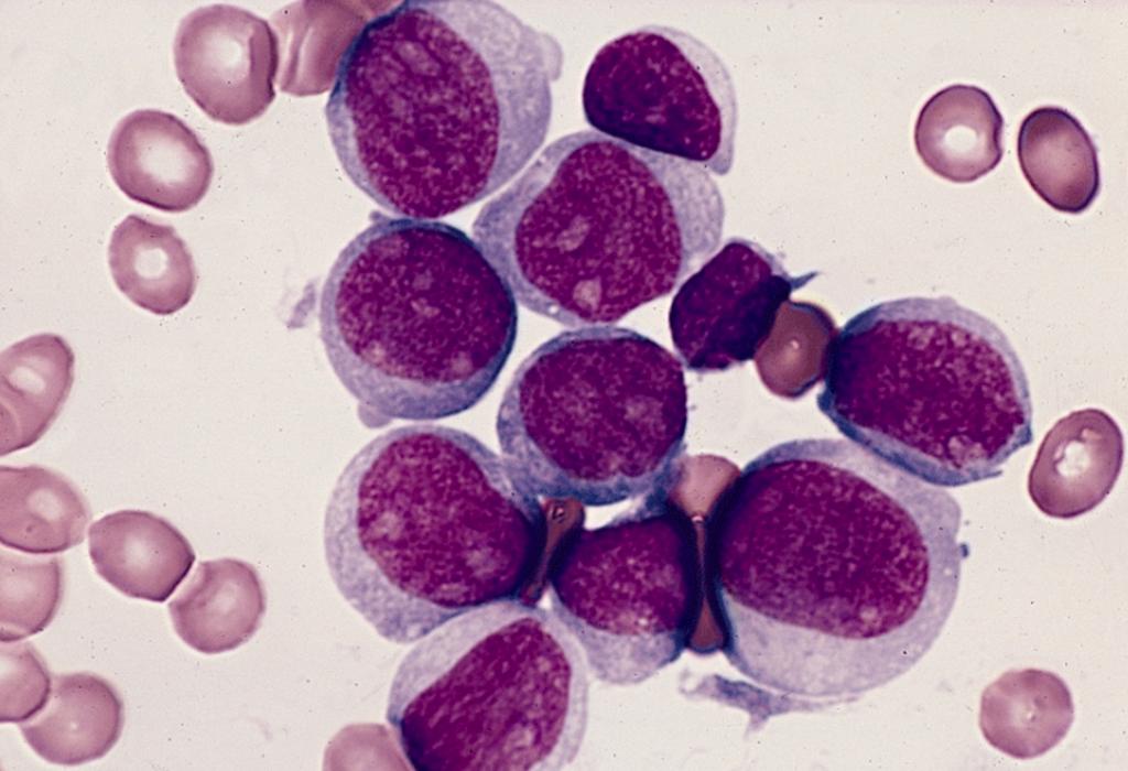 Akute Myeloische Leukämie und Blasten. © AFIP / Pathology Database / wikimedia