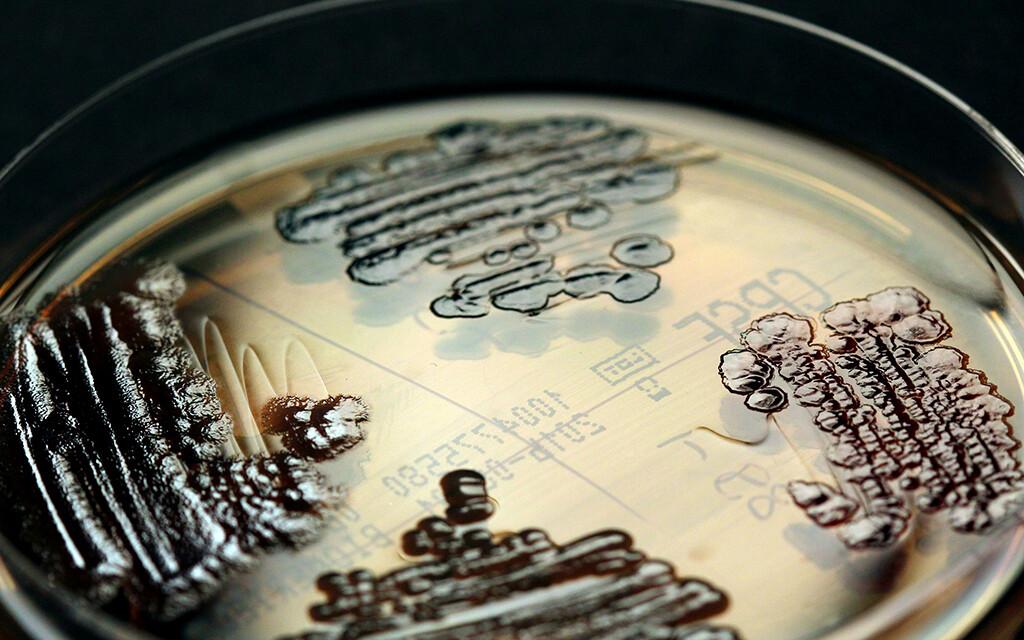 Durch Carbapenemase immer mehr Enterobakterien gegen Carbapenem resistent. © IMMIH, Köln / Axel Hamprecht