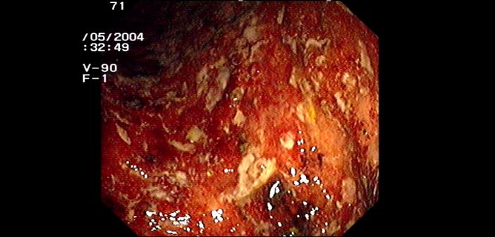 Die Wahl der Therapie hängt bei Colitis ulcerosa sehr vom Krankheitsausmass und vor allem der Krankheitslokalisation ab. © Joachim Guntau / CC-by-sa 2.0 / wikimedia