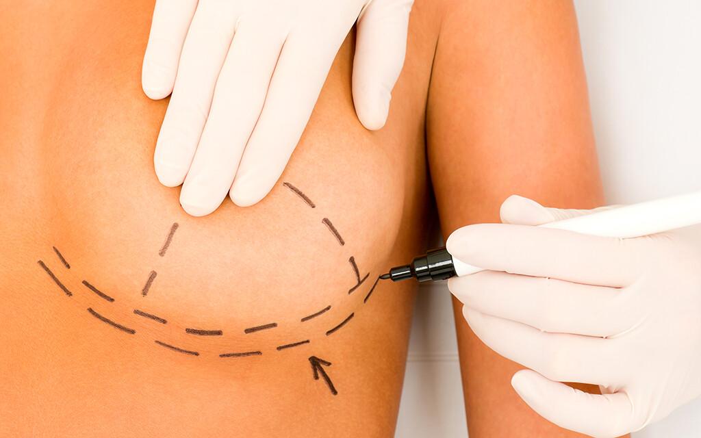 infektion nach der brust implantat