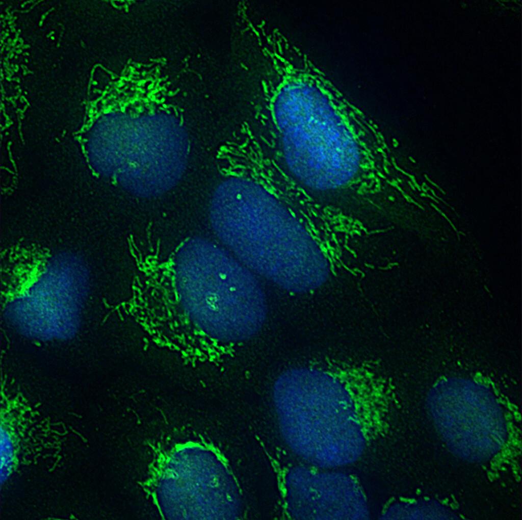 Fluoreszenz-mikroskopische Aufnahme eines Mitochondrien-Netzwerkes (grün) und des Zellkerns (blau) in einer menschlichen Zelle. © umg / rehling
