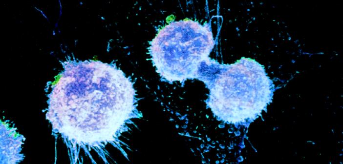 Ein Ovarialkarzinom (Eierstockkrebs) kann lange unbemerkt bleiben, da es sich in die freie Bauchhöhle ausbreiten kann. Nach einer funktionierenden Früherkennung wird intensiv gesucht.