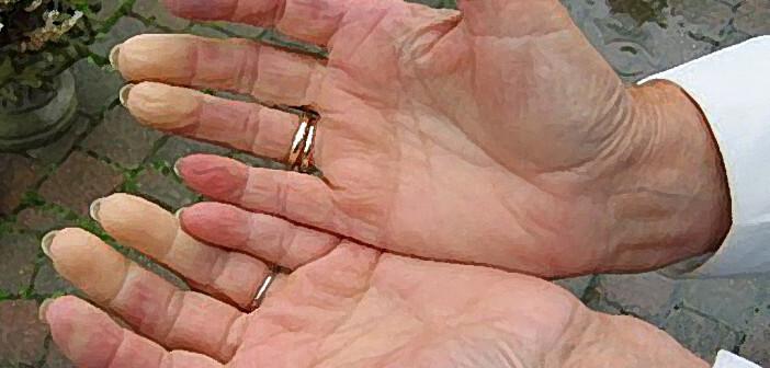 Das Raynaud-Phänomen tritt bei 3–16% der Bevölkerung auf. © Jamclaassen-commonswiki / CC BY-SA 3.0