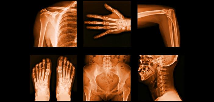 Opioide haben sich gegen Schmerzen bei Rheuma bewährt. © itsmejust / shutterstock.com