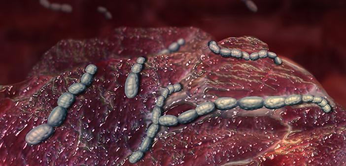 Scharlach bei Kindern entsteht durch eine Streptokokken-Infektion. © elv-design / shutterstock.com