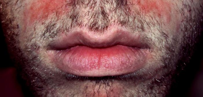Seborrhoe © Roymishali / CC 3.0 / wikimedia