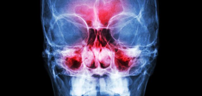 Eine Nasennebenhöhlenentzündung erfordert eine rechtzeitigen Therapie. © puwadol jaturawutthichai / shutterstock.com