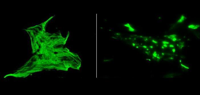 Ein komplexes Skelett im Inneren verbindet Zellen fest mit ihren Nachbarn. Schon eine Genveränderung kann genügen, damit dieses Skelett zusammenbricht. © American Journal of Human Genetics / Universitätsklinikum Freiburg