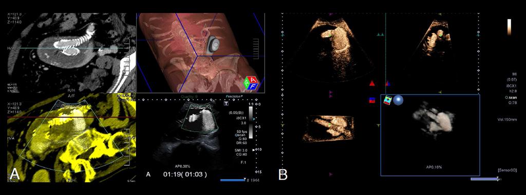 Abbildung 3: Hochmoderner Fusionsultraschall mit Applikation von Ultraschallkontrastmittel zum Nachweis eines großen Endoleaks, einer Komplikation nach minimalinvasiver Therapie mittels Stentprothese. CT- und US-Datensatz werden fusioniert und überlagert dargestellt, um den Ort der Blutung lokalisieren zu können (A). 3D-Darstellung der Blutung in den vorbestehenden Aneurysmasack, der nach der Therapie nicht mehr durchblutet sein sollte (B). Bei diesem niereninsuffizienten Patienten wurde auf eine erneute Angio-CT verzichtet. Der Patient konnte erfolgreich therapiert werden, die Diagnose Endoleak Typ 3 vom rechten defekten Schenkel ausgehend wurde bestätigt.