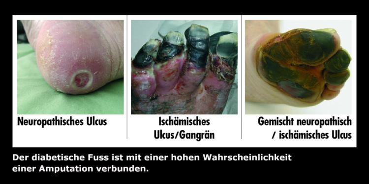 Diabetischer Fuß: Ursachen, Symptome und Behandlung