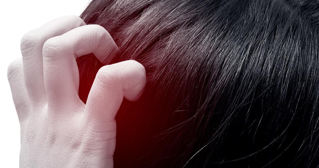 Bei Dermatomykosen im Haarbereich, der Kopfhaut, kommen alternativ Salben und flüssige Mittel zum Einsatz. © Tharakorn / shutterstock.com
