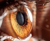 Wechselnde Sehschärfe als frühes Warnzeichen für Diabetes