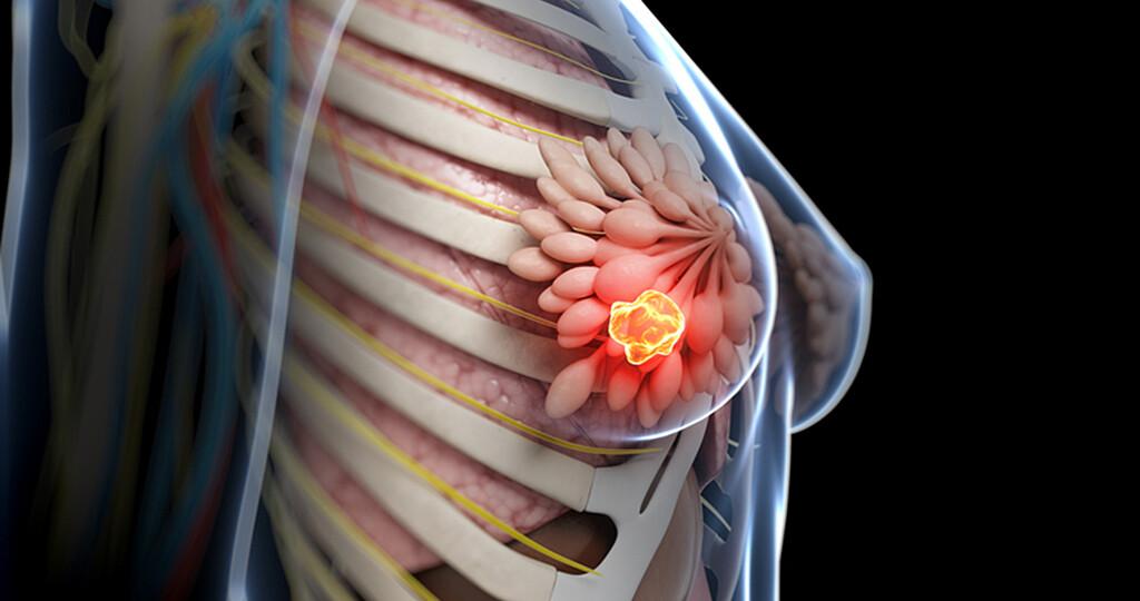 Jährlich wird bei mehr als 300.000 Frauen in Europa Brustkrebs diagnostiziert. © sebastian kaulitzki / shutterstock.com