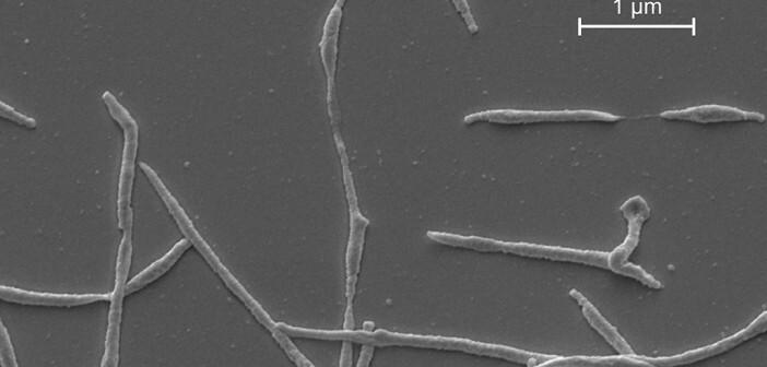 Das Bakterium Mycoplasma pneumoniae kann die Autoimmunkrankheit Guillain-Barré-Syndrom auslösen. ©Front Microbiol. 2016; 7:329