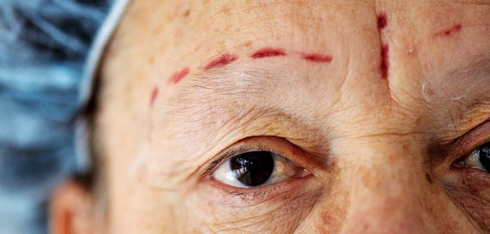 Der Demographiewandel bedeutet auch für die Chirurgie eine große Herausforderung, insbesondere für die Plastische Chirurgie. © zurijeta / shutterstock.com