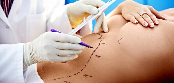 Auf Komplikationen bei Schönheitsoperationen hat der Chirurg oft nur bedingten bzw. oftmals überhaupt keinen Einfluss. © gtfour / shutterstock.com