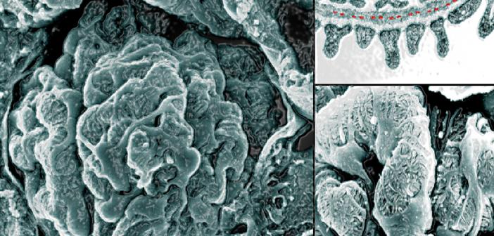 Diabetes und Hypertonie: Als eigentlichen Auslöser für die typischen Veränderungen an der glomerulären Basalmembran bei diabetischer Nephropathie hat man die chronische Hyperglykämie verantwortlich gemacht, wobei eine begleitende Hypertonie als wesentlicher Risikofaktor für die Entwicklung einer Makroangiopathie gilt.