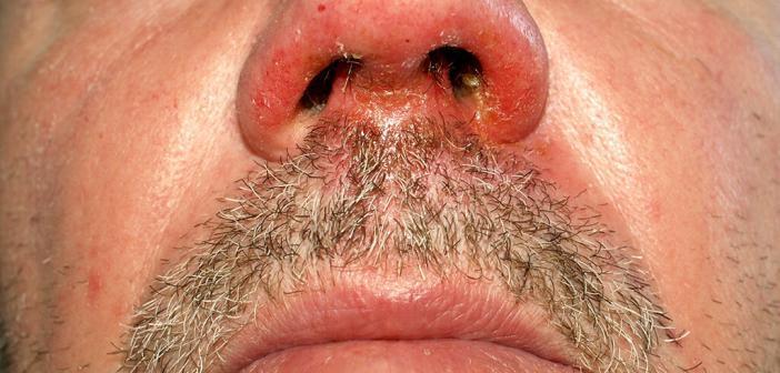 Impetigo der Nase © Klaus D. Peter / CC3.0 / wikimedia