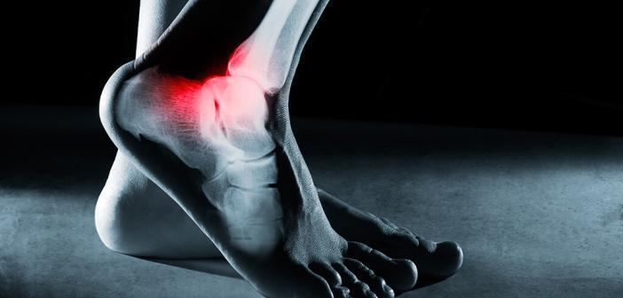 Das Sprunggelenk ist die Verbindung zwischen dem Unterschenkel und dem Fuß. © Hamara / shutterstock.com