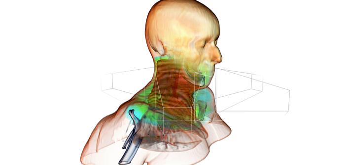 Simulierte Dosisverteilung des Bestrahlungsplans. © Fraunhofer MEVIS