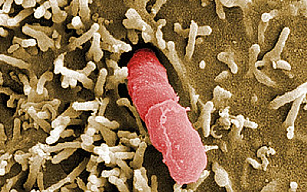 Yersinia pseudotuberculosis © HZI / Manfred Rohde