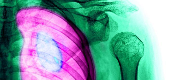 Lungenkrebs © wonderisland / shutterstock.com