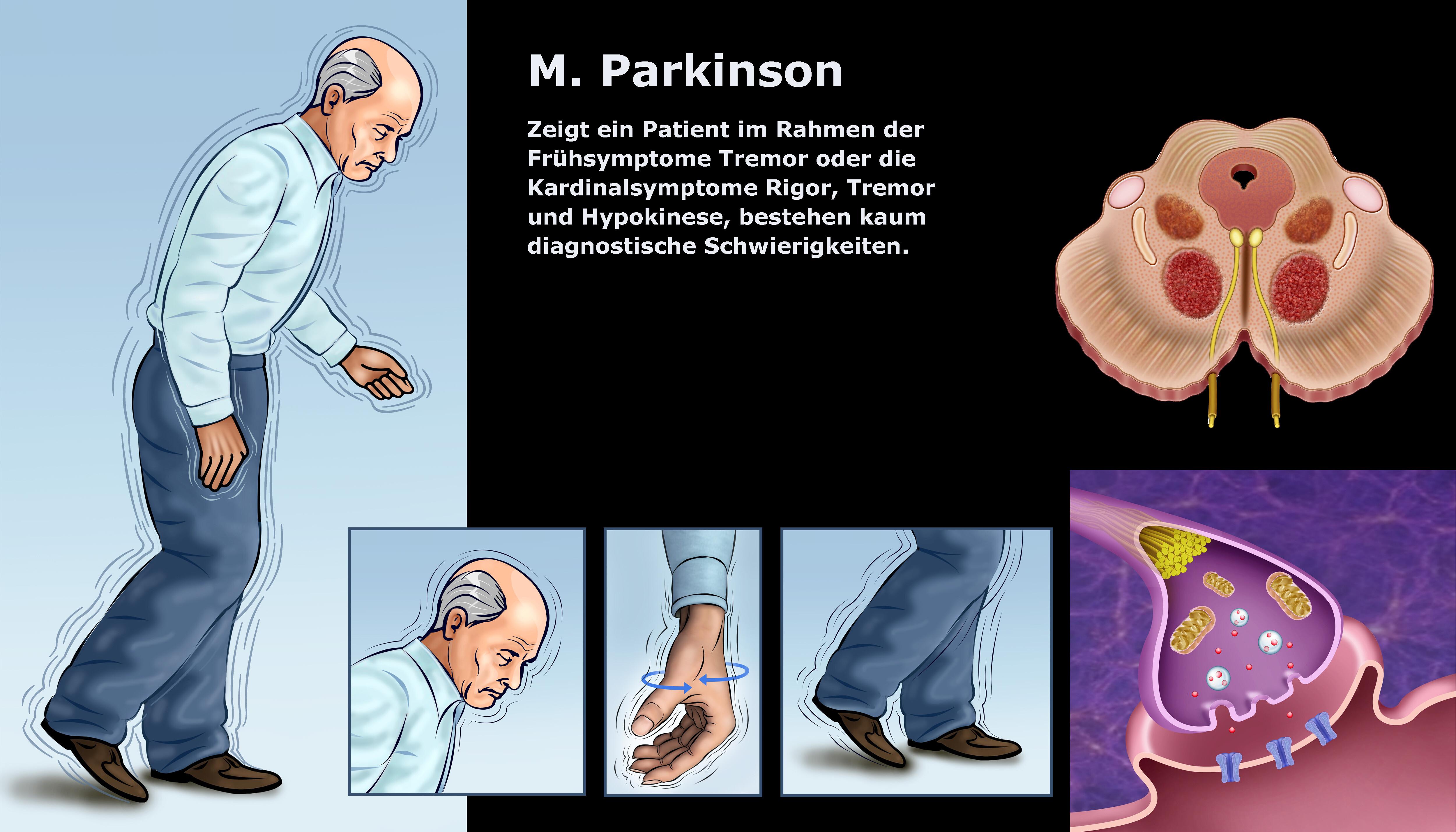 M. Parkinson © Alexilusmedical / shutterstock.com